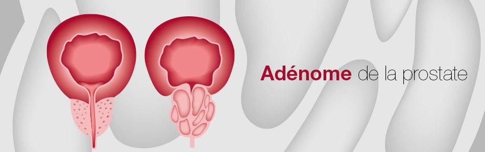 images/header/header-adenome.jpg